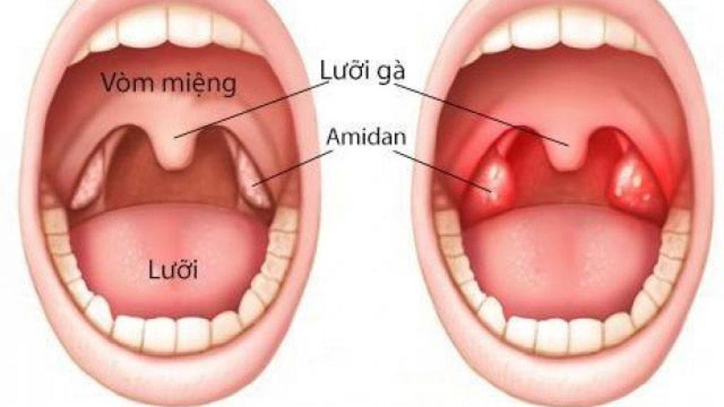Viêm Amidan - Bệnh viện Tai Mũi Họng Sài Gòn
