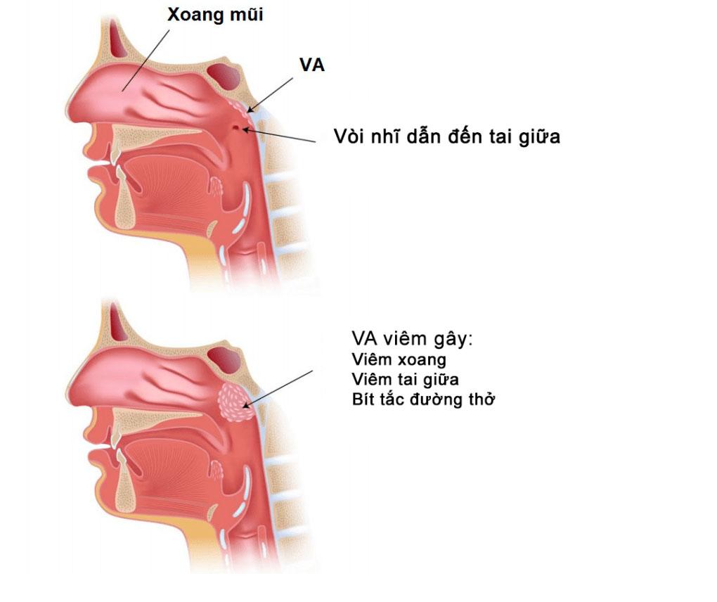 BỆNH VIÊM VA - Bệnh viện Tai Mũi Họng Sài Gòn