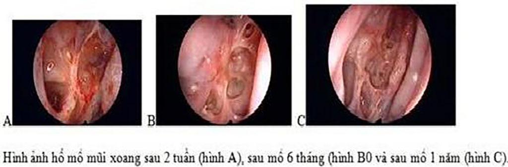 Điều trị Viêm Mũi Dị Ứng - Bệnh viện Tai Mũi Họng Sài Gòn