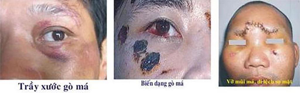 Mù, giảm thị lực sau chấn thương đầu mặt - Bệnh viện Tai Mũi Họng Sài Gòn
