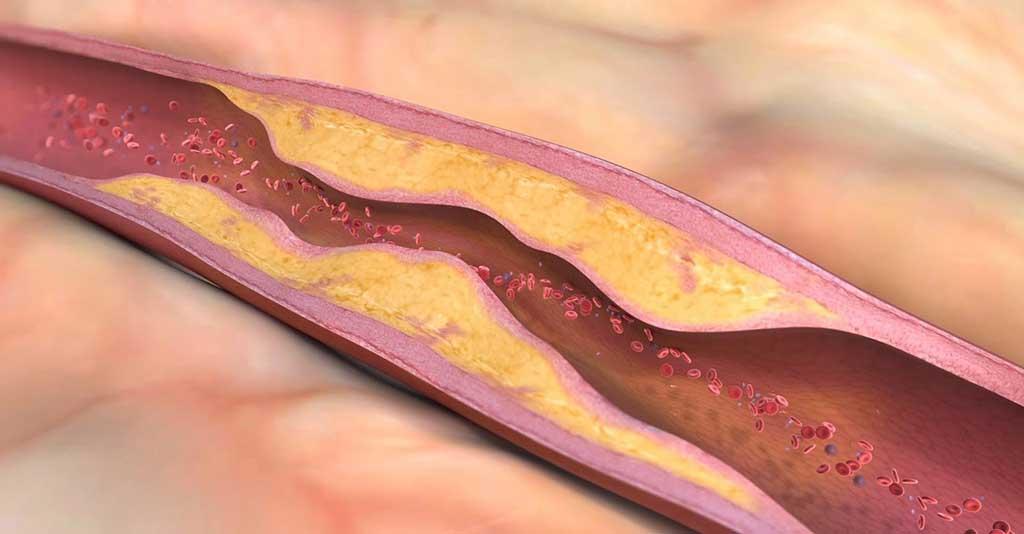 Cholesterol trong máu - Phòng Khám Đa Khoa Quốc Tế Sài Gòn