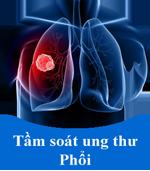 3-ung-thu-phoi