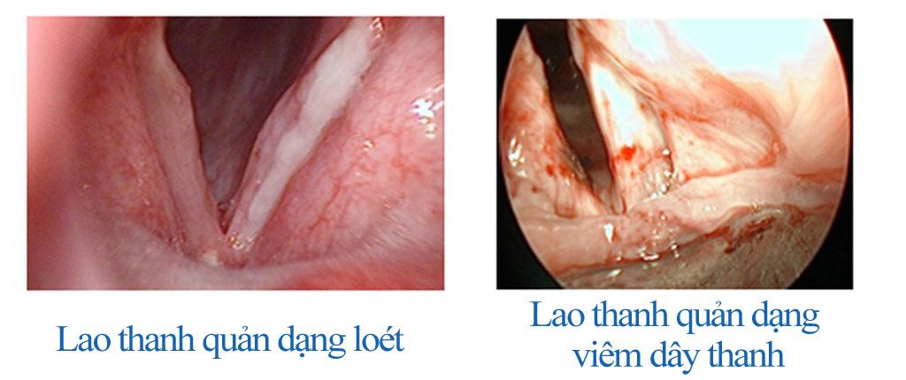 Bệnh Thanh quản Mãn tính - Bệnh viện Tai Mũi Họng Sài Gòn