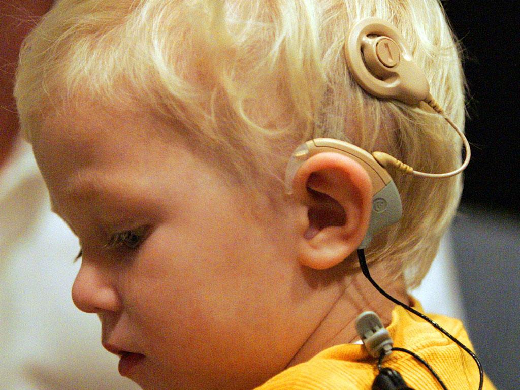 Khiếm thính (Điếc Câm) ở trẻ em - Bệnh viện Tai Mũi Họng Sài Gòn
