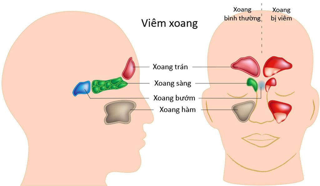 VIÊM XOANG CẤP - Bệnh viện Tai Mũi Họng Sài Gòn