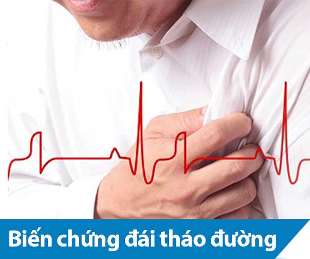 Biến chứng mạch máu nhỏ của đái tháo đường - Phòng Khám Đa Khoa Quốc Tế Sài Gòn