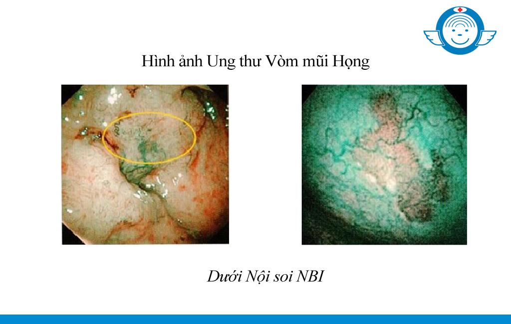 Tam_soat_ung_thu_vom_mui_hong_noi_soi_NBI_benh_vien_tai_mui_hong_sai_gon3