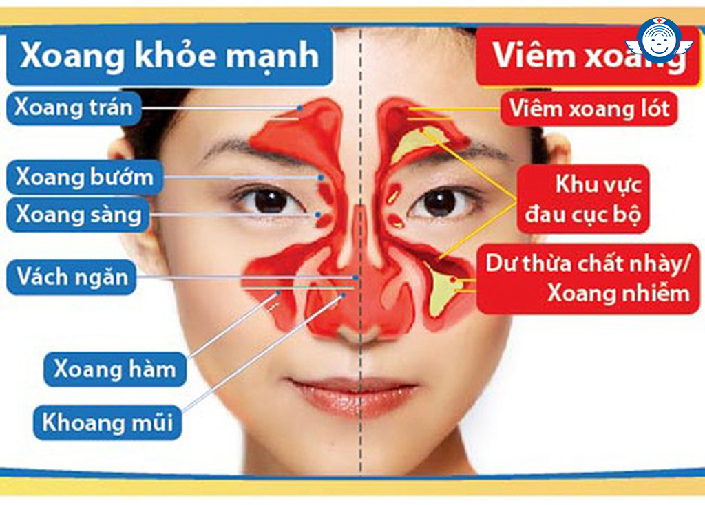 VAI TRÒ CỦA RỬA MŨI - Bệnh viện Tai Mũi Họng Sài Gòn