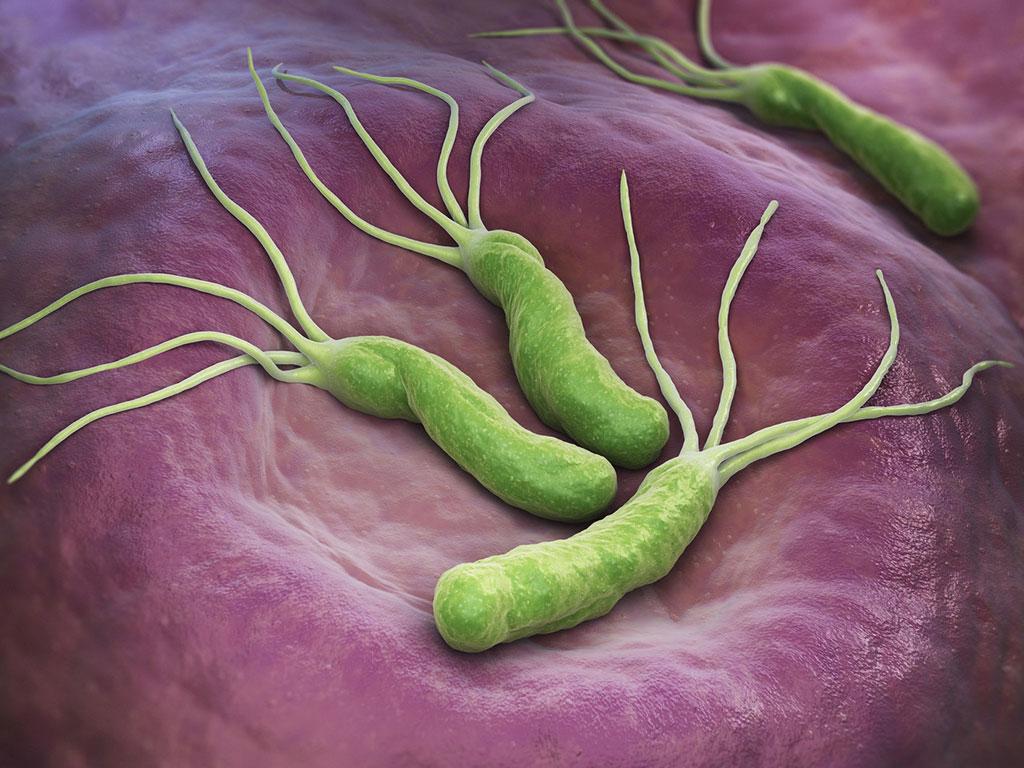 vi khuẩn Helicobacter pylori - Phòng Khám Tai Mũi Họng Sài Gòn