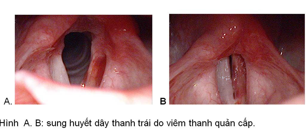 Bệnh viêm thanh quản cấp - Bệnh viện Tai Mũi Họng Sài Gòn