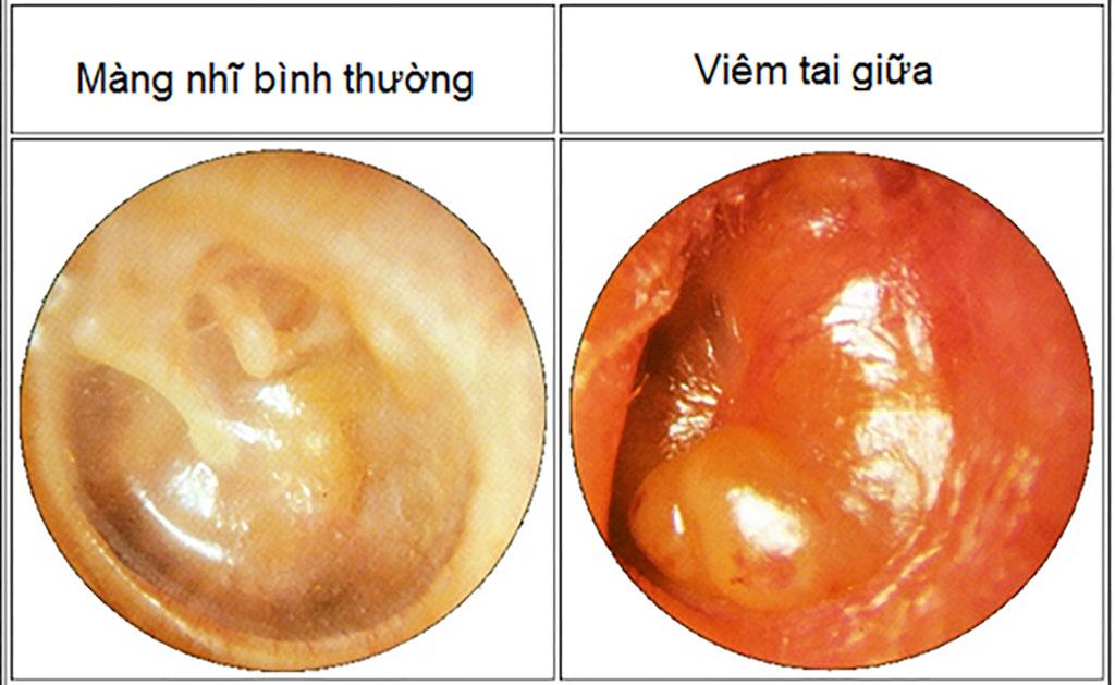 Bệnh Viêm Tai Giữa là gì, cách phòng ngừa và điều trị - Bệnh viện Tai Mũi Họng Sài Gòn