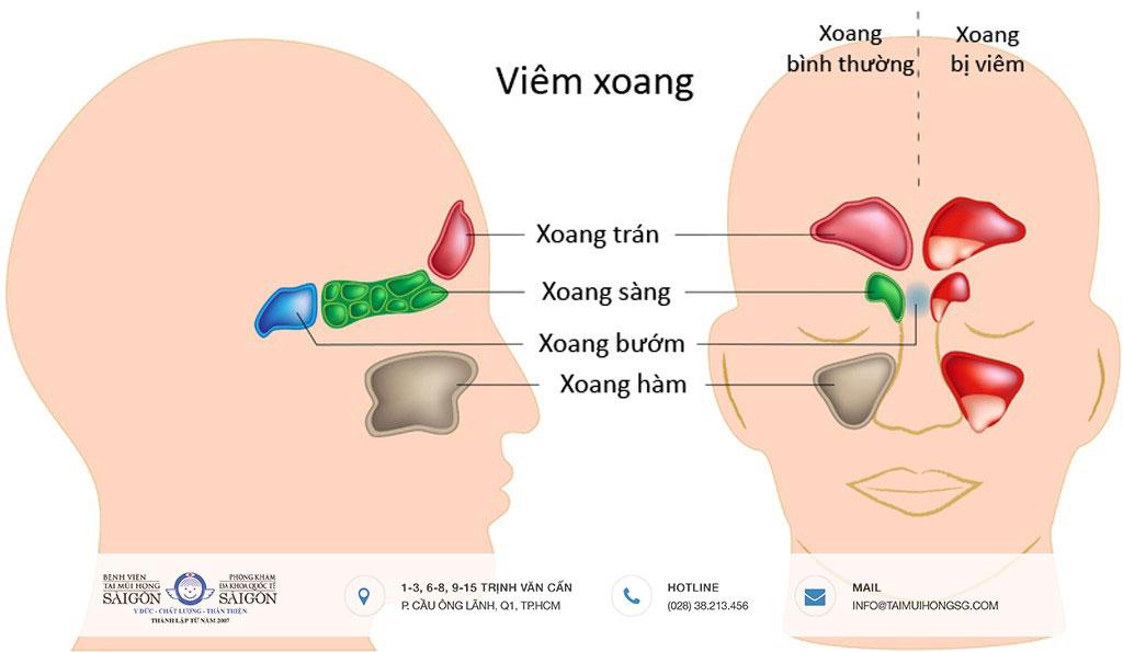 Viêm mũi xoang cấp là gì, cách điều trị như thế nào? - Bệnh viện Tai Mũi Họng Sài Gòn