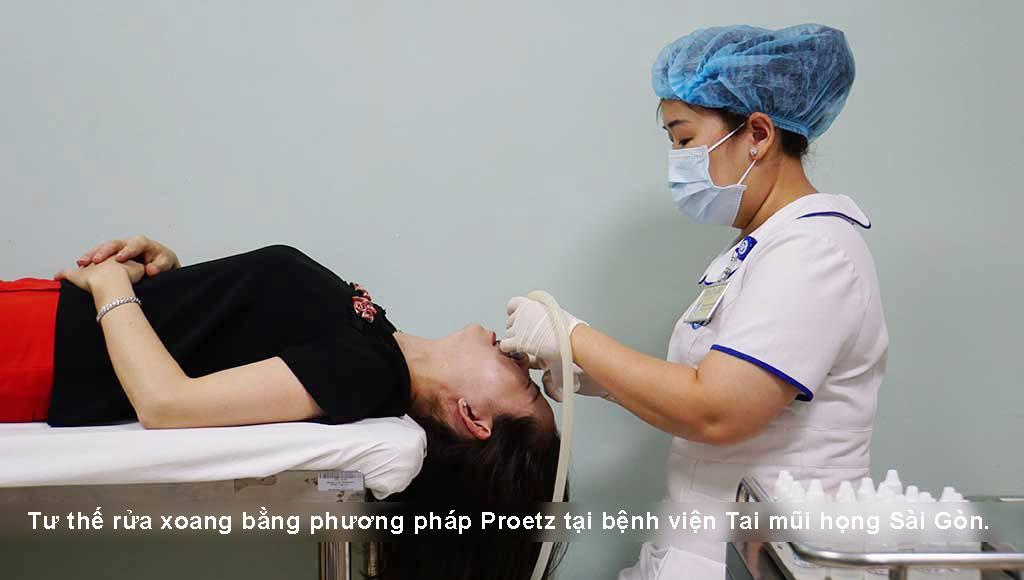 Rửa xoang bằng phương pháp Proetz | Bệnh viện Tai Mũi Họng Sài Gòn